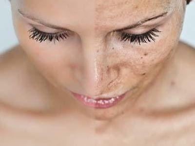 Un programa informático deduce rasgos generales de la cara a partir delADN