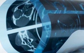 El 40% de las personas que sufren un ictus queda con secuelasdiscapacitantes