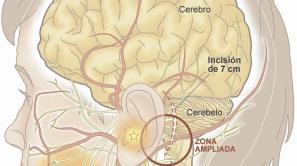 cerebro1_2