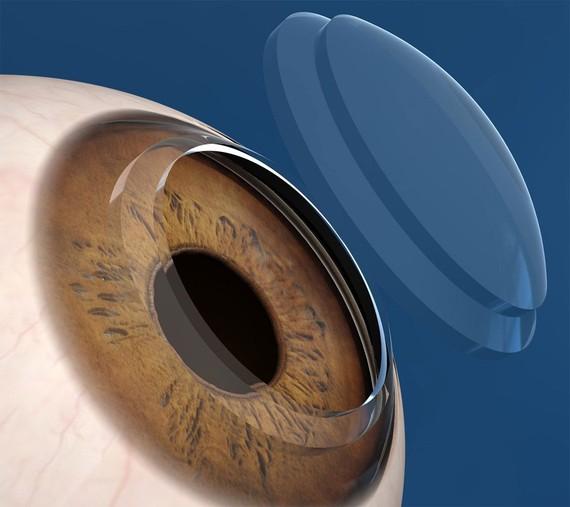 transplante-cornea_big